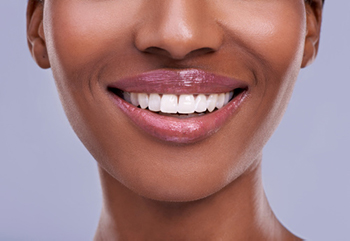 A woman smiling after her flouride treatment at Rockville Centre Dentistry