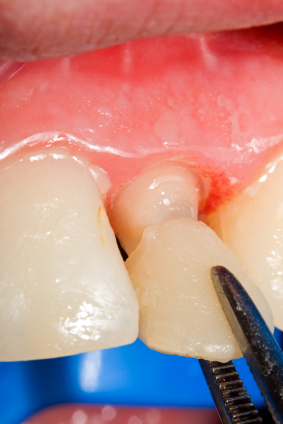 Tips for Taking Care of New Dental Veneers