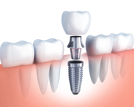 Dental implants from Rockville Centre DentistryRockville Centre, NY.