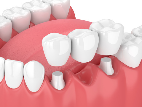 Fixed dental bridges and implants at Rockville Centre Dentistry